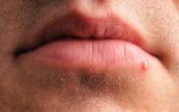 Penyebab kemunculan jerawat di bibir