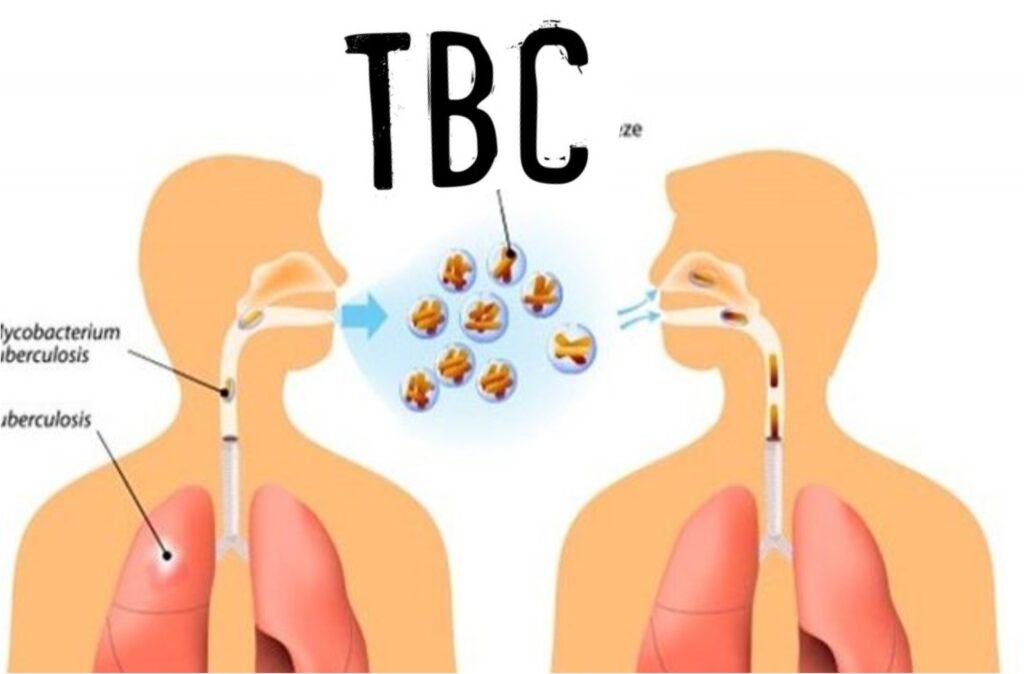 Mengenali Gejala TBC
