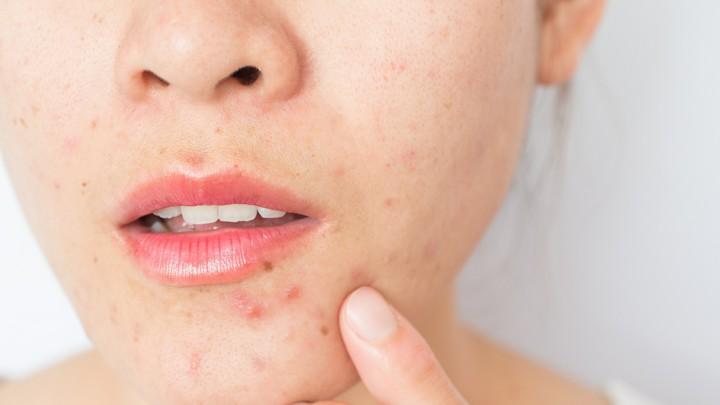 Tanda Tidak Cocok Memakai Skincare