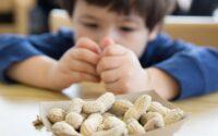 alergi kacang pada anak