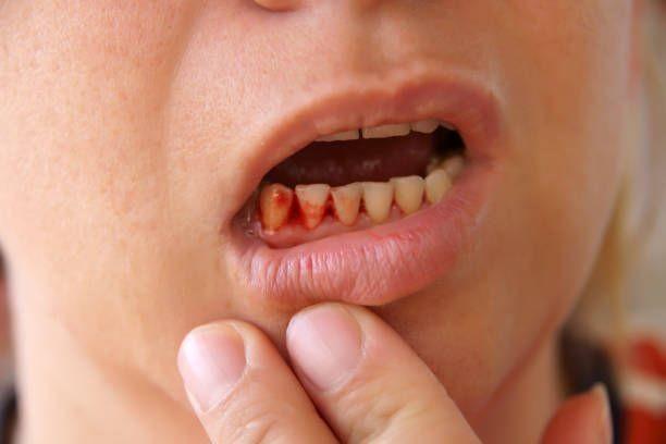 bahaya malas sikat gigi