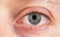 mengatasi kelopak mata kering