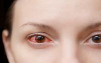 penyebab mata memerah softlens